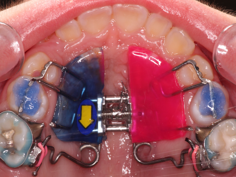 La dentition mixte et sa Phase I