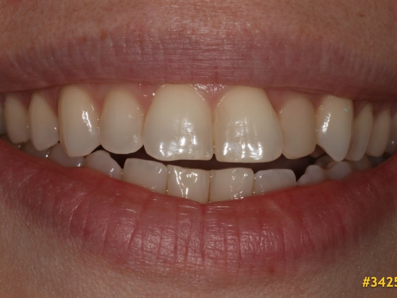 La phase I en dentition permanente