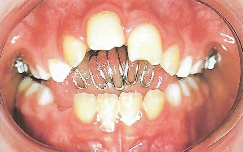 Skeletal Hyperdivergency in Mixed Dentition Part B